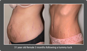 Before & After 31 year old female 3 months following a tummy tuck