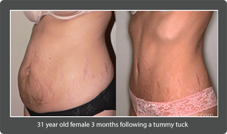 Blog - THE TUMMY TUCK: WHAT YOU CAN DO TO ENHANCE YOUR RESULTS Photo