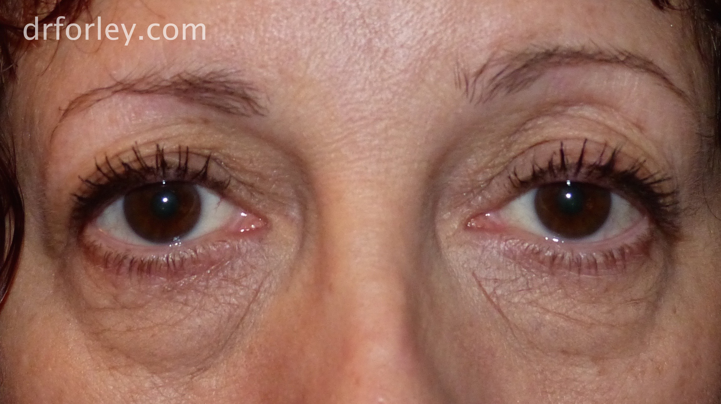 Blog - TEAR TROUGHS AND BAGGY LOWER EYELIDS Photo