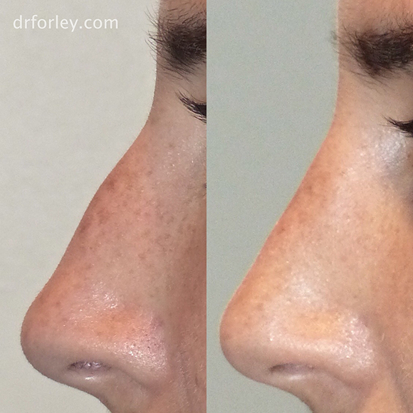 Blog - RHINOPLASTY: WHEN LESS CAN BE MORE Photo Woman's face, before and after Rhinoplasty treatment, side view, patient 2