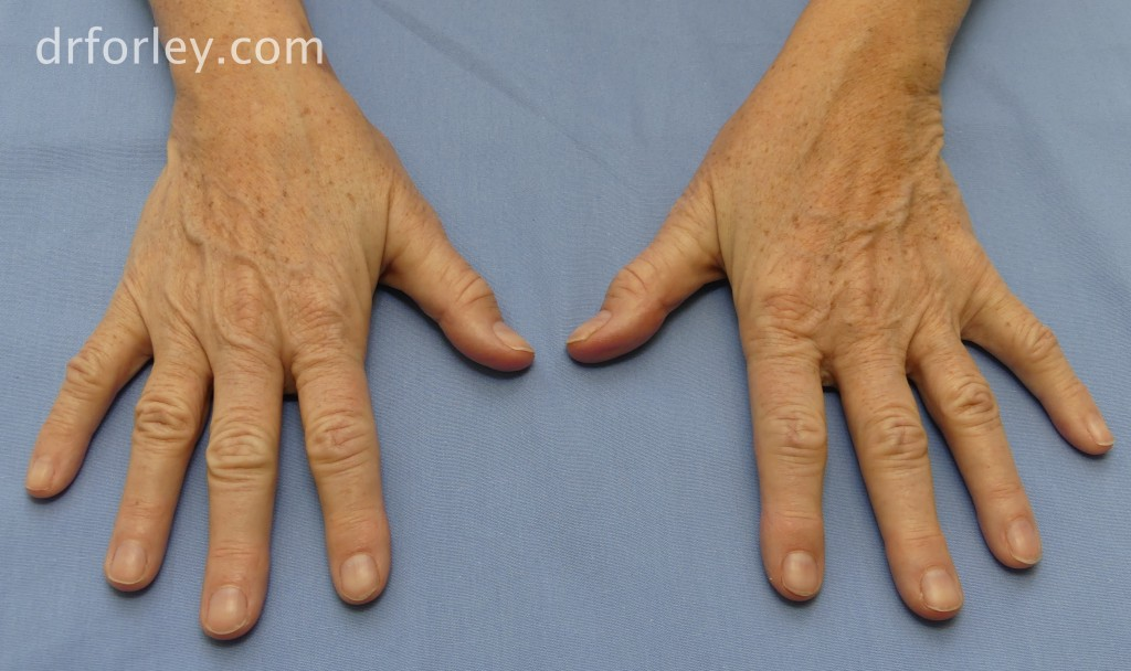 63 year old female with age spots of the hands
