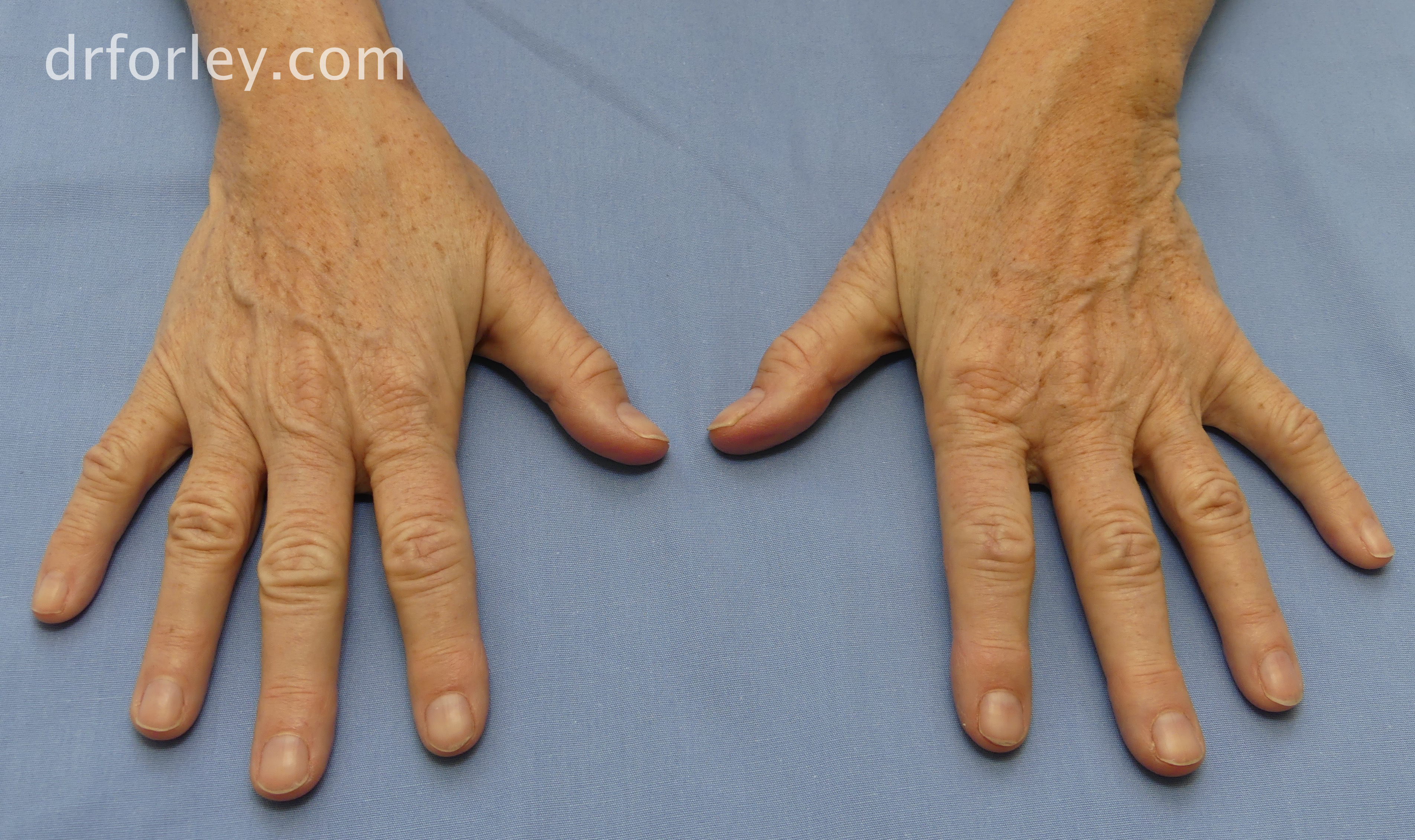 Blog - TREATING AGE SPOTS ON THE HANDS Photo Woman's hands, 64 year old female 1 month following a single Nordlys broad band light treatment of age spots