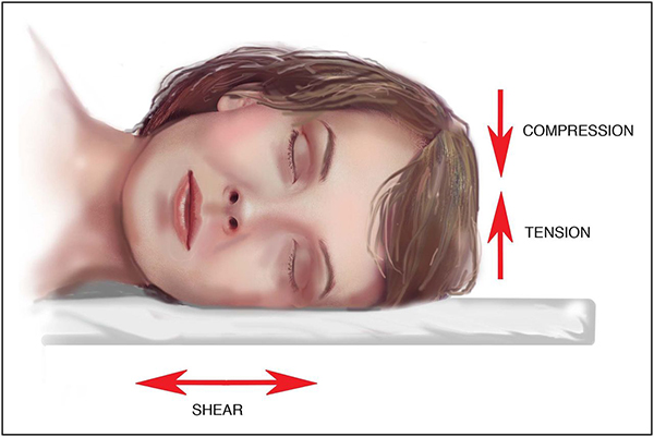 Blog - SLEEPING POSITIONS MAY CAUSE WRINKLES OVER TIME Photo