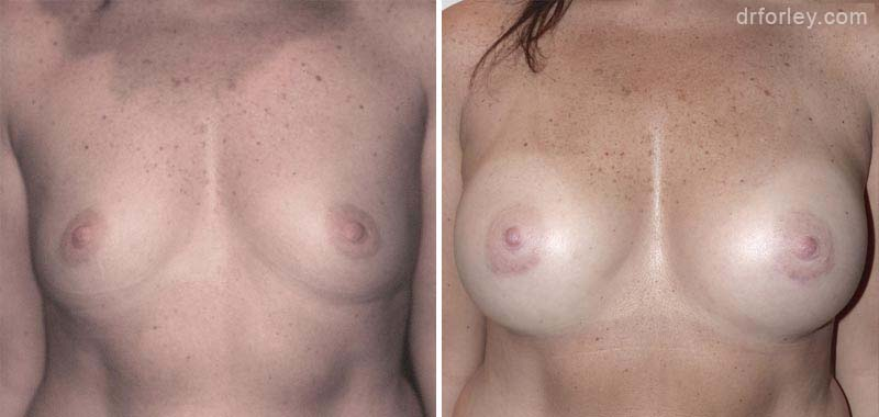 Woman's breasts, Before and After Treatment photo, front view, female patient 2