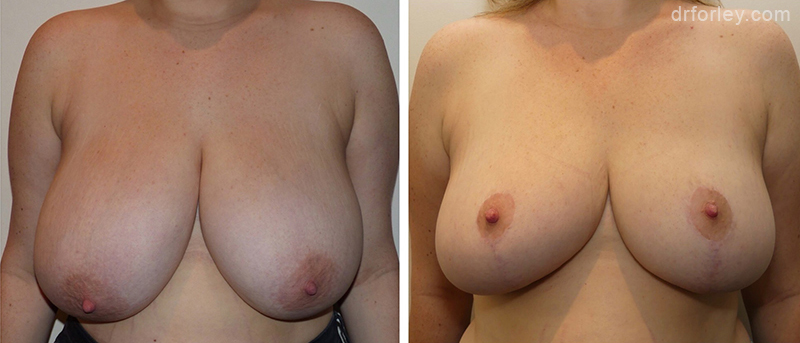Before & After Breast Reduction Set1 thumb1