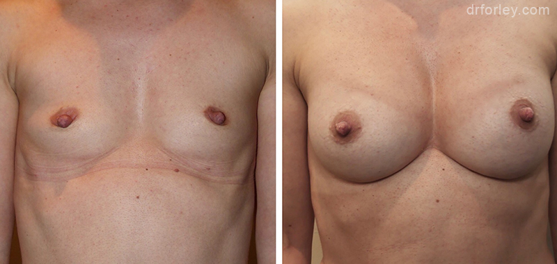 Woman's breasts, Before and After Treatment photo, front view, female patient 3