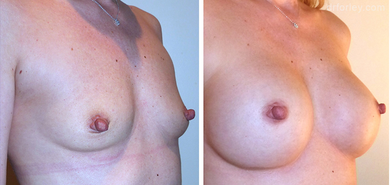Woman's breasts, Before and After Treatment photo, oblique view, female patient 4