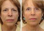 Woman's face Before and After Facelift treatment, front view, patient 3