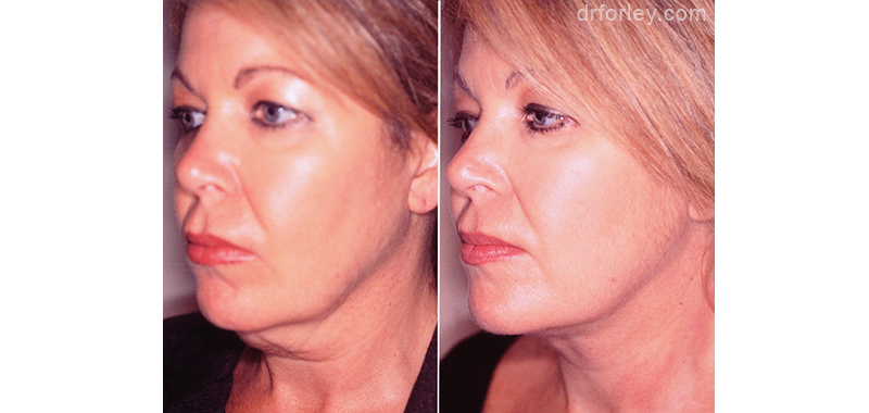 Woman's Face, before and after necklift treatment, neck, left side oblique view, female patient 1