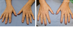 Before & After Non Surgical Set4 thumb3