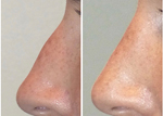 Before & After Nose Set2 thumb2