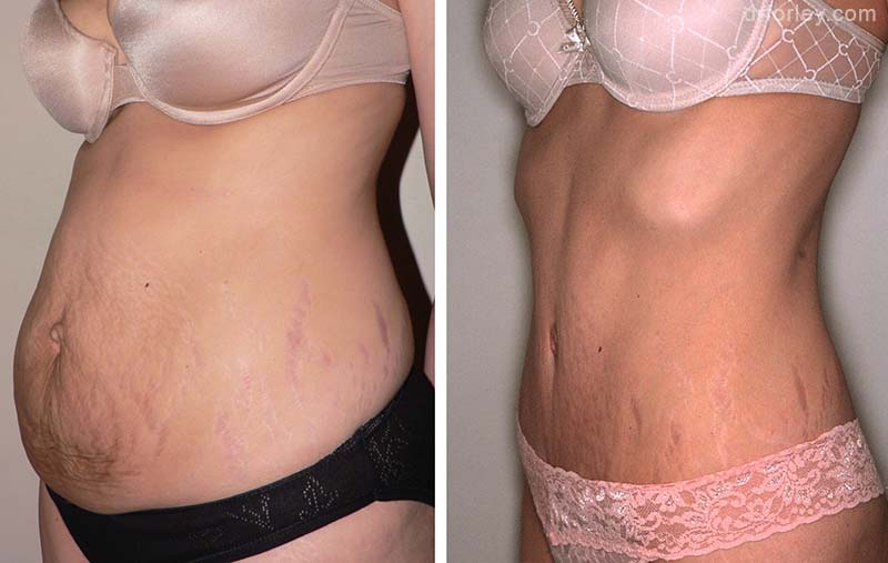 Female TUMMY TUCK, Before and After treatment photo, oblique view, patient 2