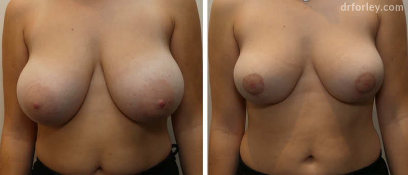 Before & After Breast Reduction Set2 thumb2