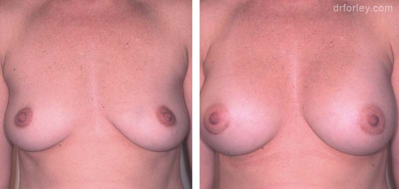 Woman's breasts, Before and After Treatment photo, front view, female patient 5