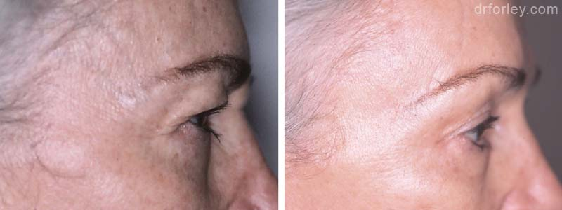 Before & After Browlift Set2 thumb2