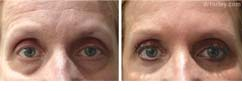 Before & After Browlift Set3 thumb3