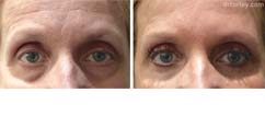 Before & After Eyes Set5 thumb6