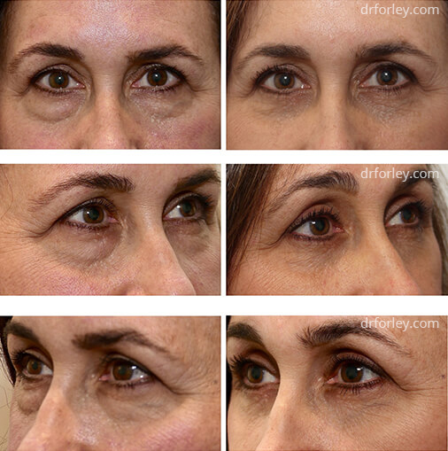 Woman's face, before and after EYELID SURGERY Treatment, female eyelid, patient 1