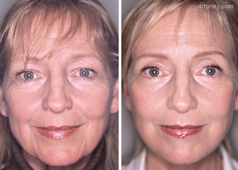 Woman's face Before and After Facelift treatment, front view, patient 1