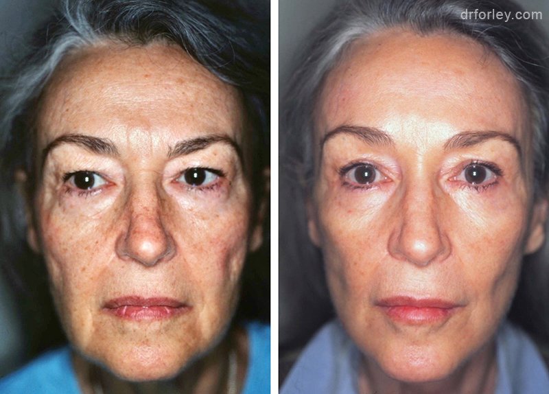 Woman's face Before and After Facelift treatment, front view, patient 4
