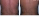Before & After Liposuction  Set3 thumb2