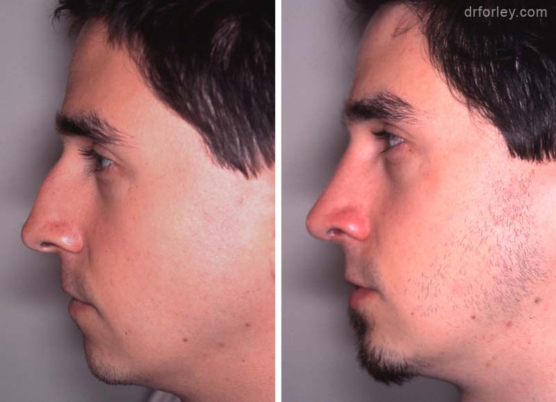 Before & After Nose Set3 thumb3