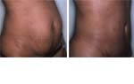 Before & After Tummy Tuck Set2 thumb2