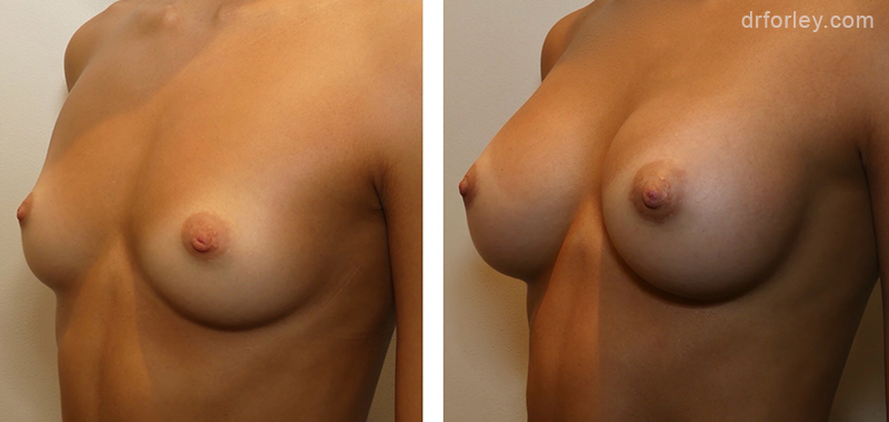 Woman's breasts, Before and After Treatment photo, oblique view, female patient 6