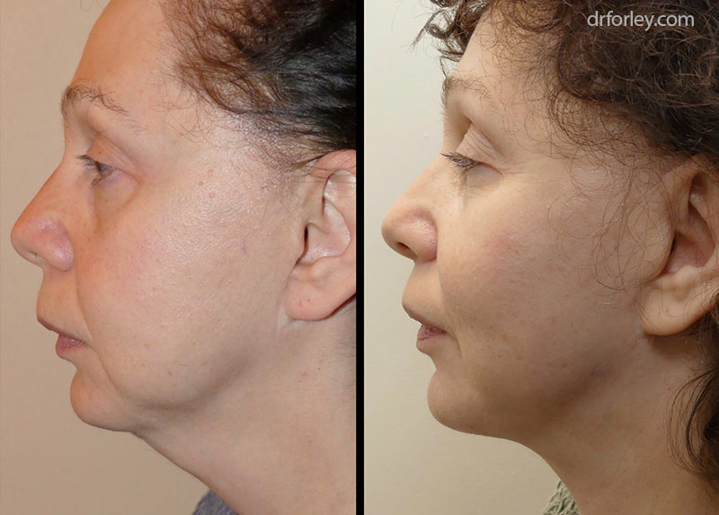 Before & After Facelift Set2 thumb1