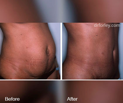 Woman's Tummy Tuck Before and after treatment, right side view, patient 3
