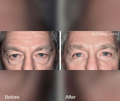 Male Face Before and after treatment, front view, patient 5