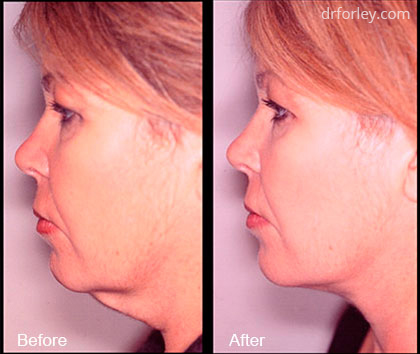 Woman's Face Before and after treatment, left side view, patient 6