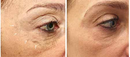 Woman's face, 45 year old female 4 months following laser treatment of prominent periorbital vein, under eye