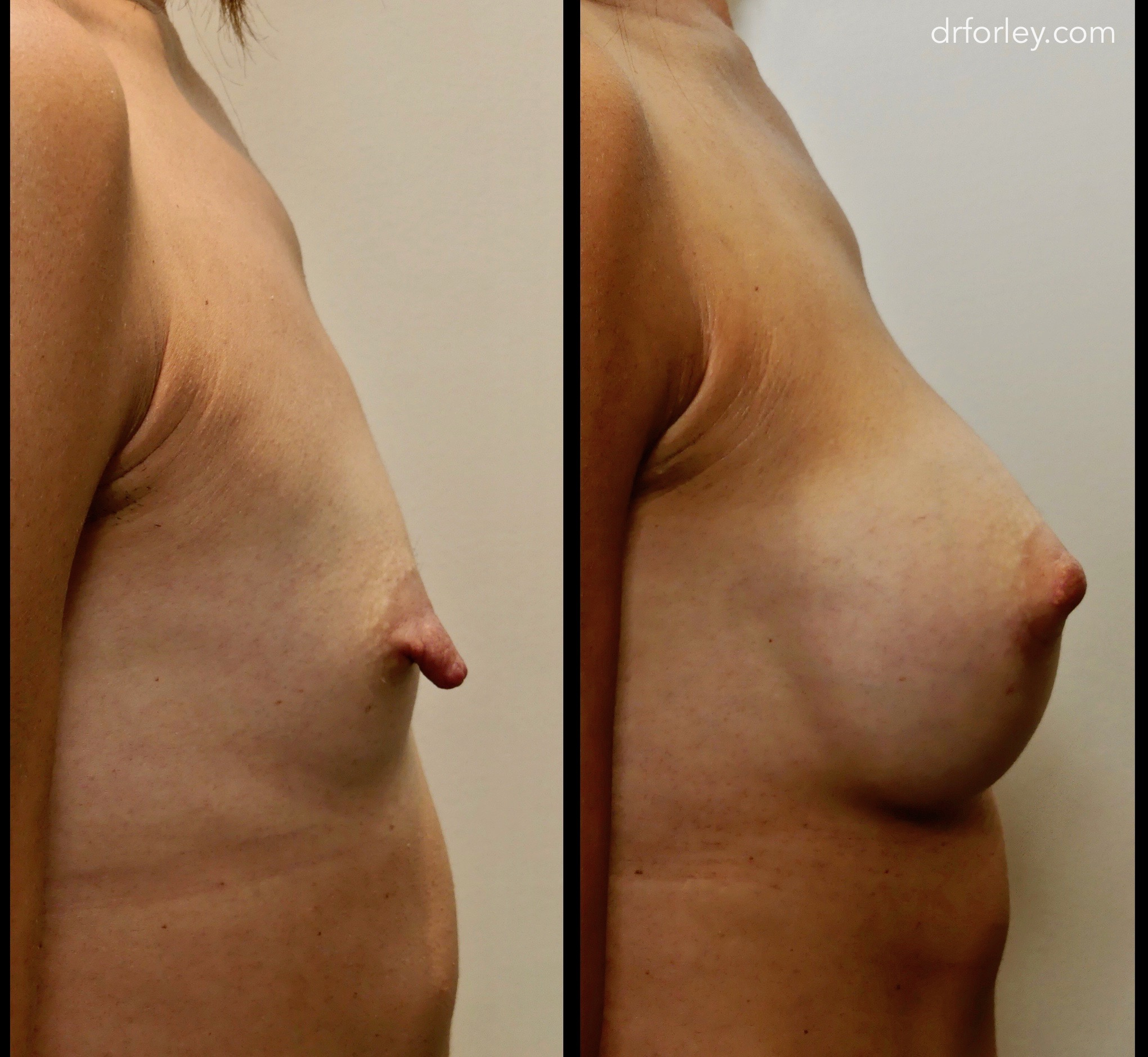 Blog - NIPPLE REDUCTION Photo