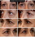 LOWER EYELID REJUVENATION - B/A photos