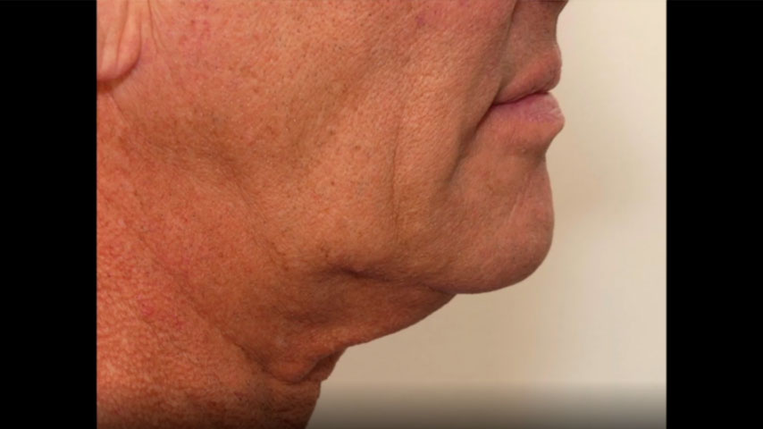 Male face, 61 year old male 6 months following FaceTite (side view)