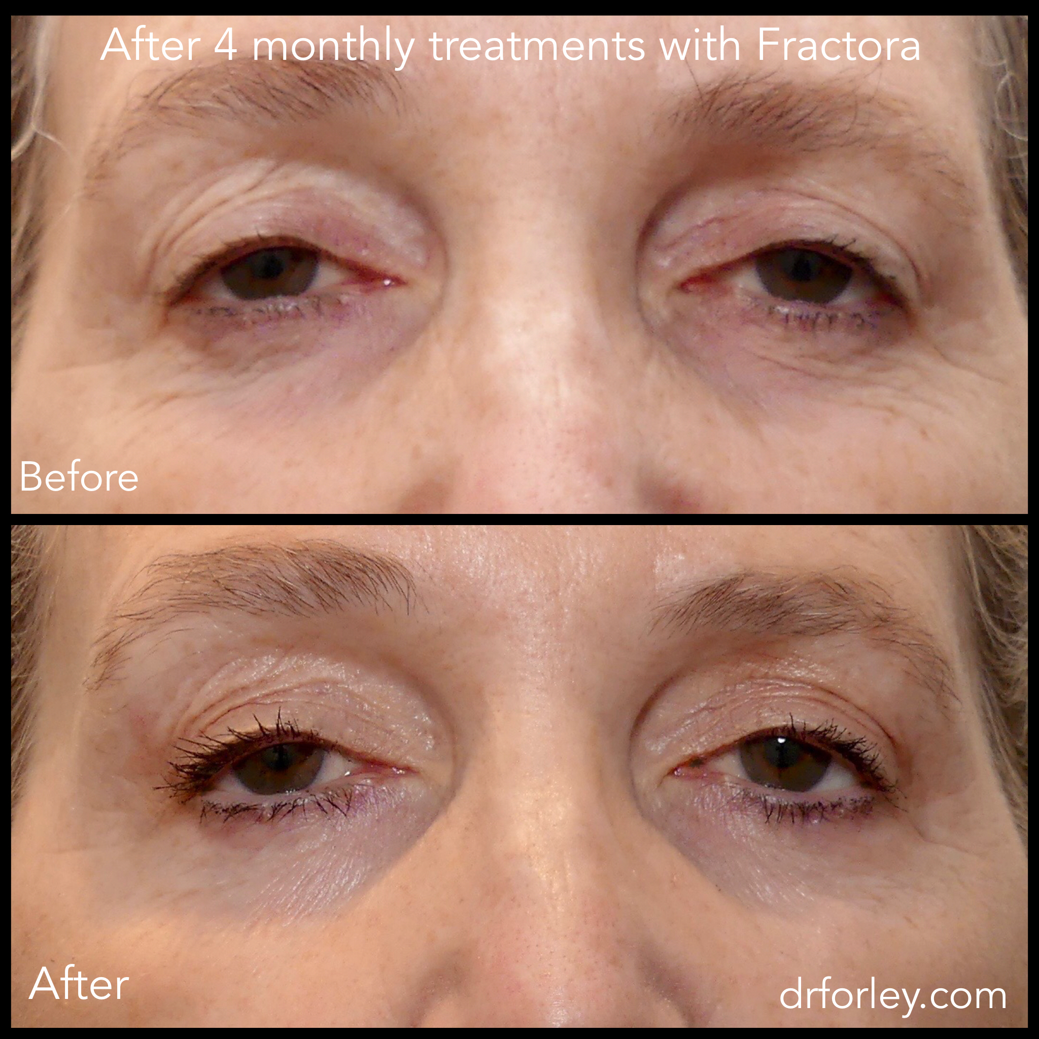 Woman's face, before and after 4 monthly treatments with Fractora (front view)