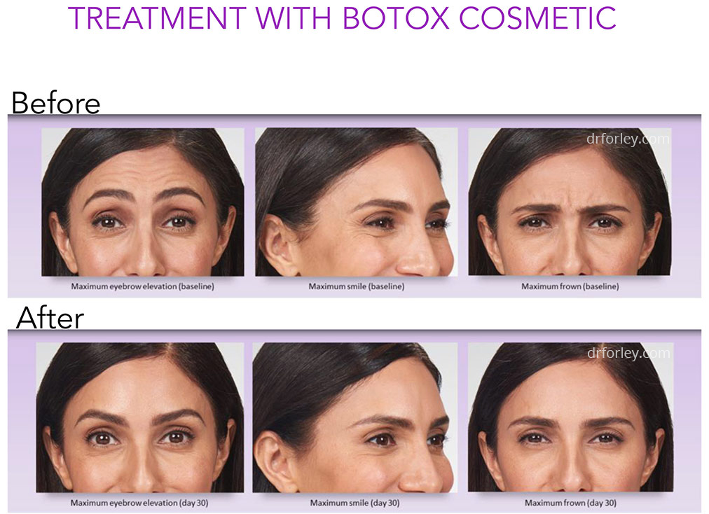 Treatment with Botox Cosmetic - Female face, before and after neuromodulators procedure