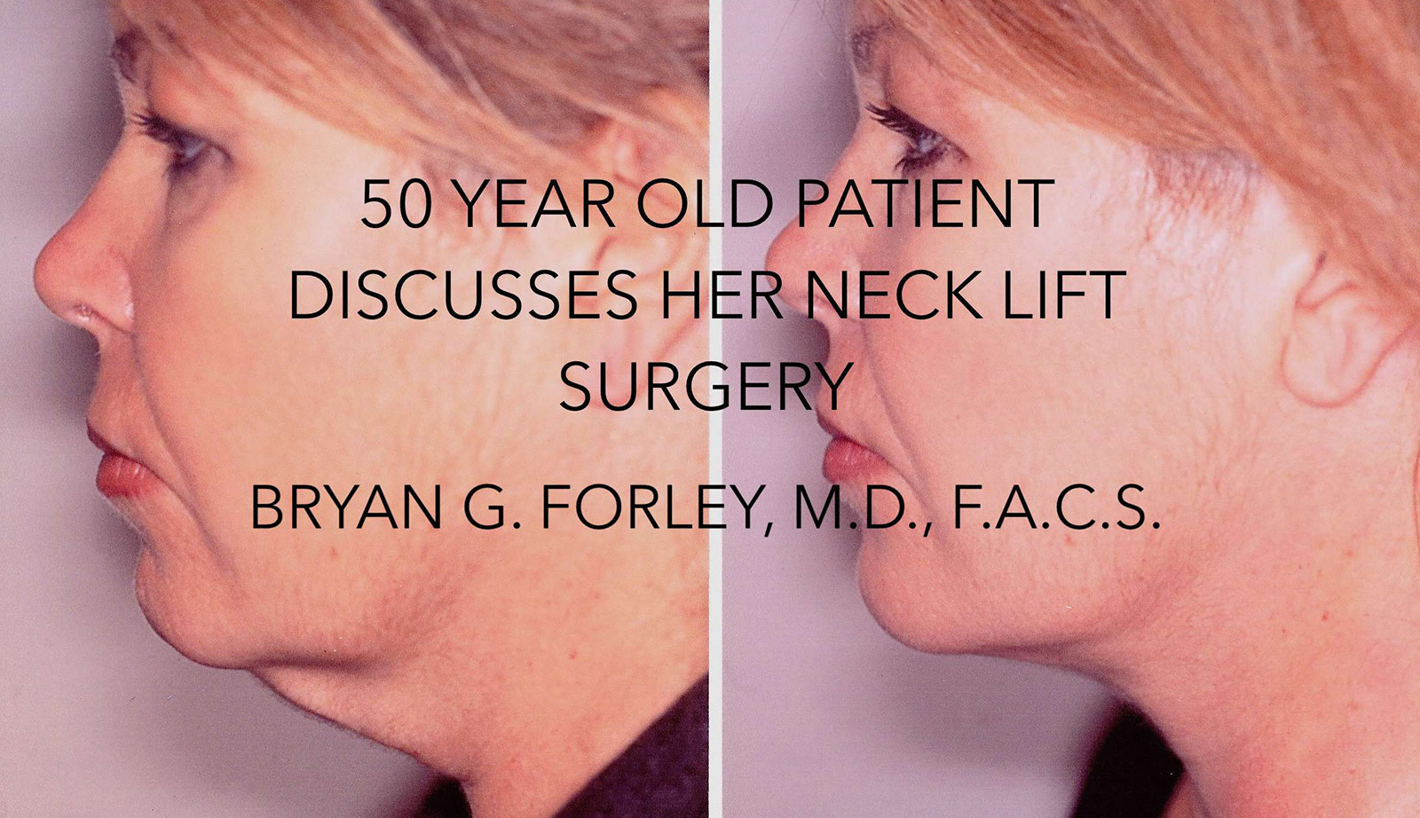 Watch Video: 50 year old patient discusses her neck lift surgery, Bryan G.Forley