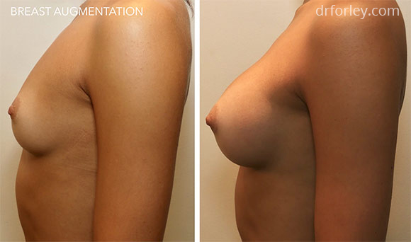 Female breast, before and after BREAST AUGMENTATION treatment photo, left side view, patient 1