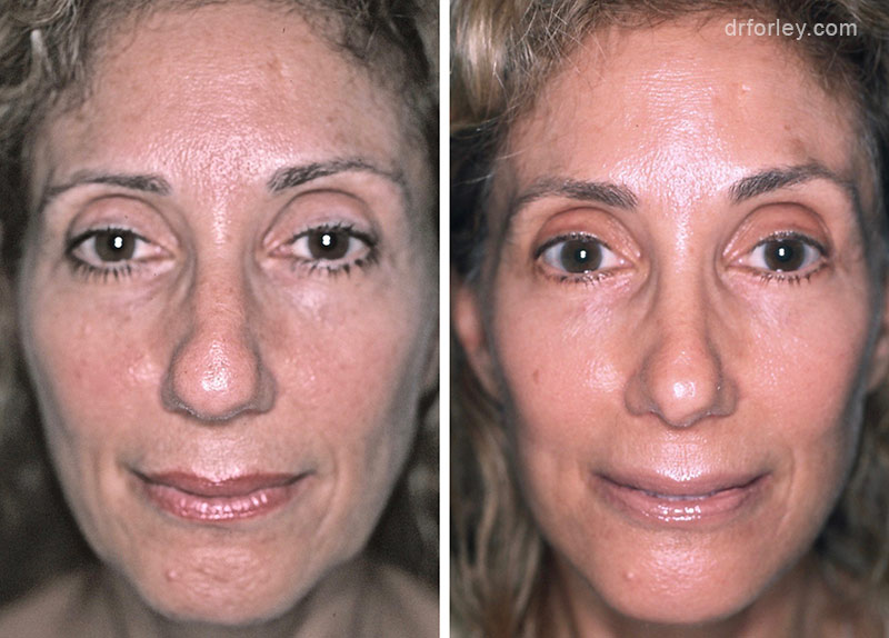 Before & After Facelift Set7 thumb2