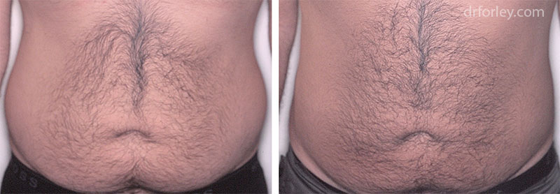 Before & After Liposuction  Set4 thumb3