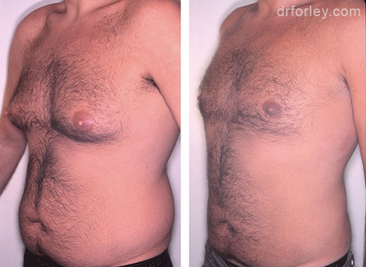 B/A photos: 36 year old male 8 months following gynecomastia surgery of the chest - oblique view