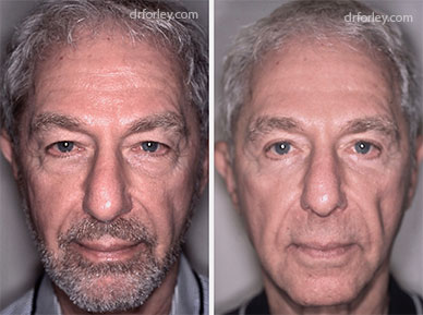 Male face, before & after Plastic Surgery treatment  photo, front view, patient 1