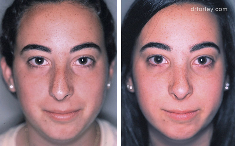 Before & After Nose Set6 thumb6