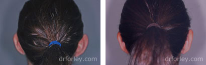 Before and After Otoplasty - Photo 1