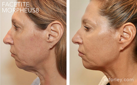 Woman's face, before & after FACETITE treatment  photo, side view, patient 1