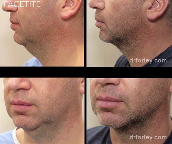 Male face, before & after FACETITE treatment  photo, side view, patient 1