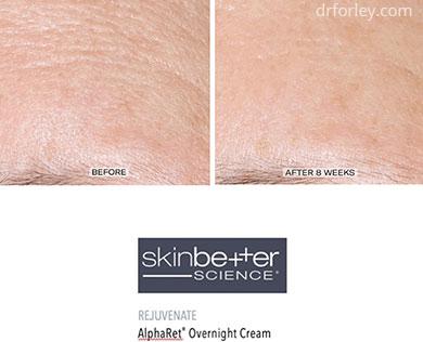 B/A photos - Skin Care Program: Skinbetter science AlphaRet Overnight Cream - Patient forehead, oblique view