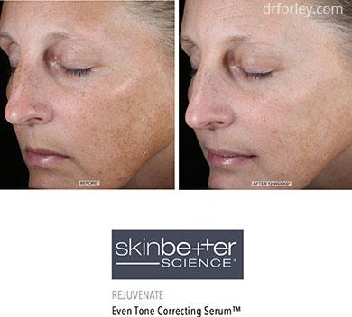 B/A photos - Skin Care Program: Skinbetter science Even Tone Correcting Serum - Woman's face, oblique view